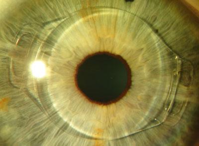 μάτι-τρόποι διόρθωσης των διαθλαστικών σφαλμάτων