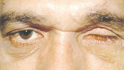 Οφθαλμικός Κόγχος